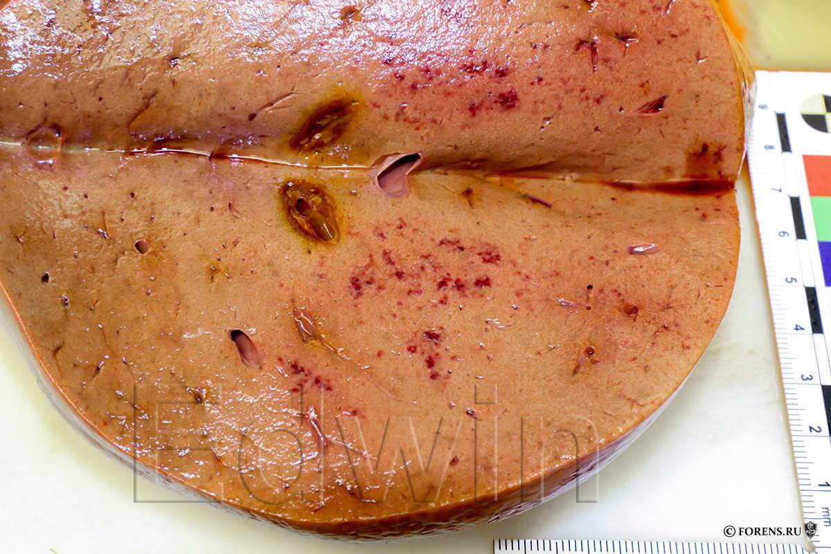 Кровоизлияния в печени