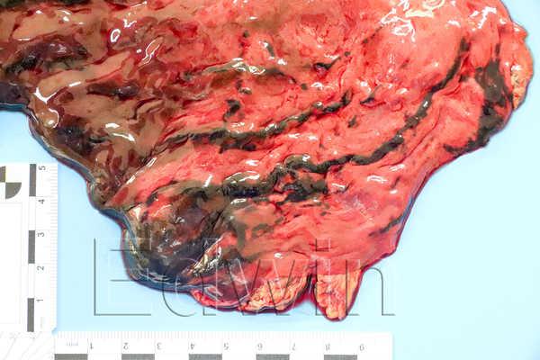 Некроз слизистой желудка