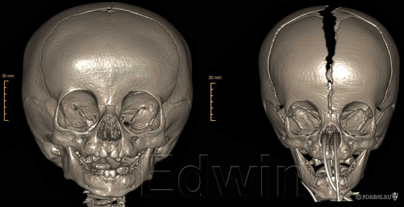 Швы черепа 6 и 9 месячного ребенка