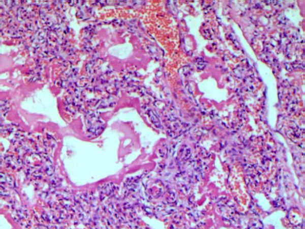 Гиалиновые мембраны
