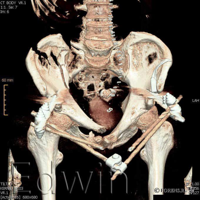 Переломы костей при автотравме