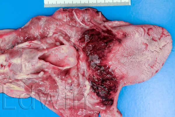 Кровоизлияние в корне языка при удавлении