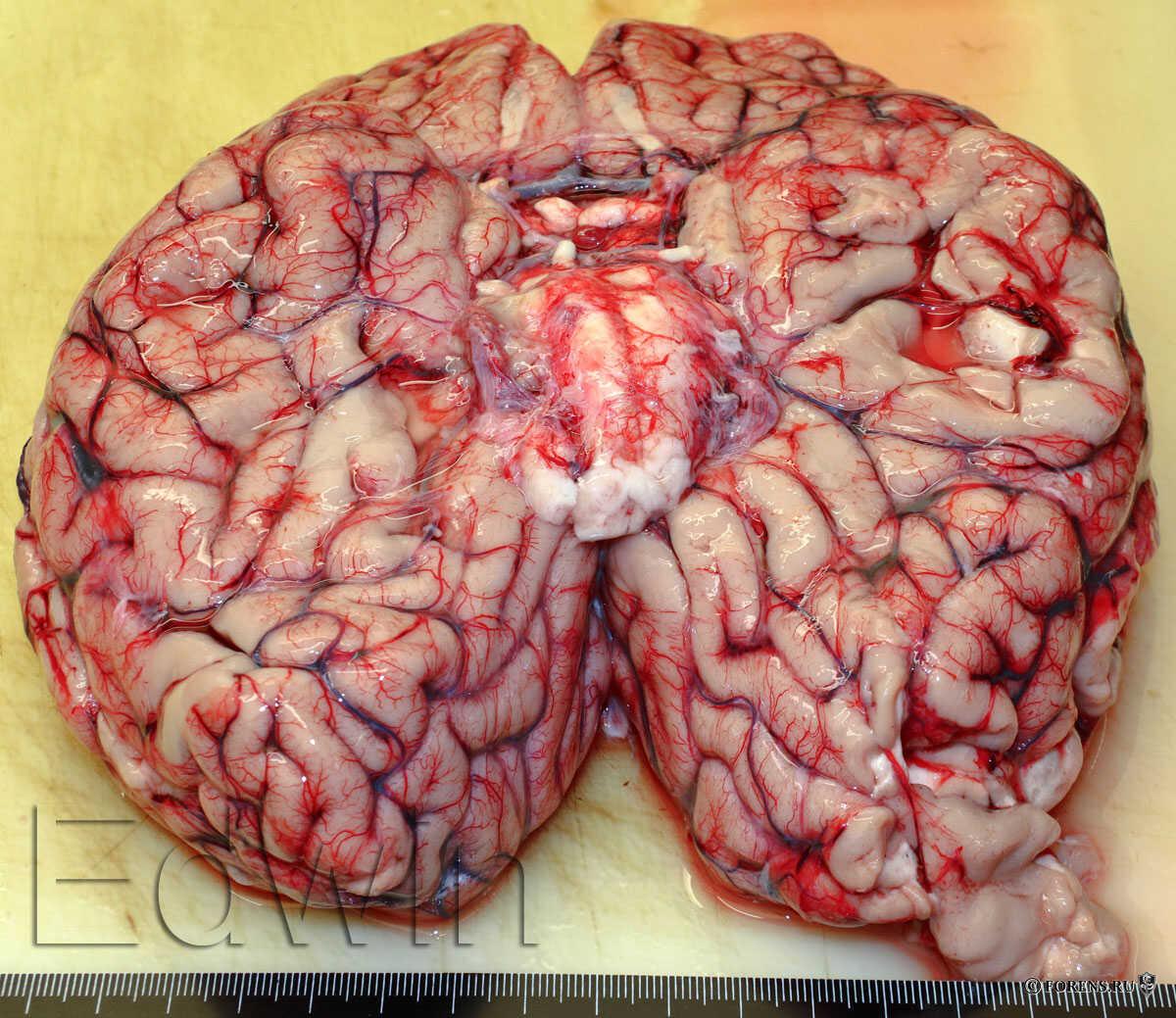 Cerebellar Agenesis. Врожденное отсутствие мозжечка.