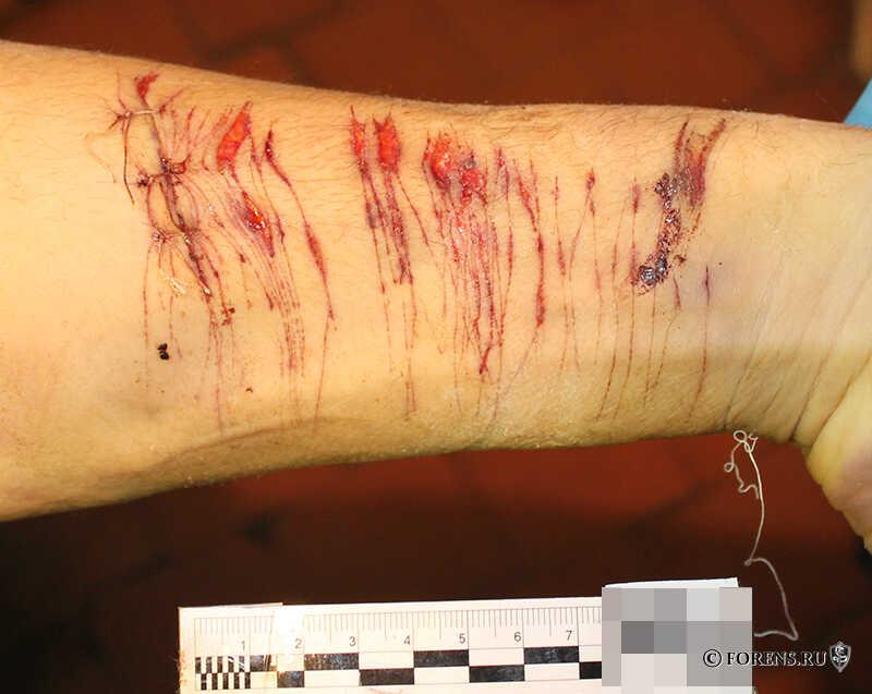 Резаные раны левого предплечья
