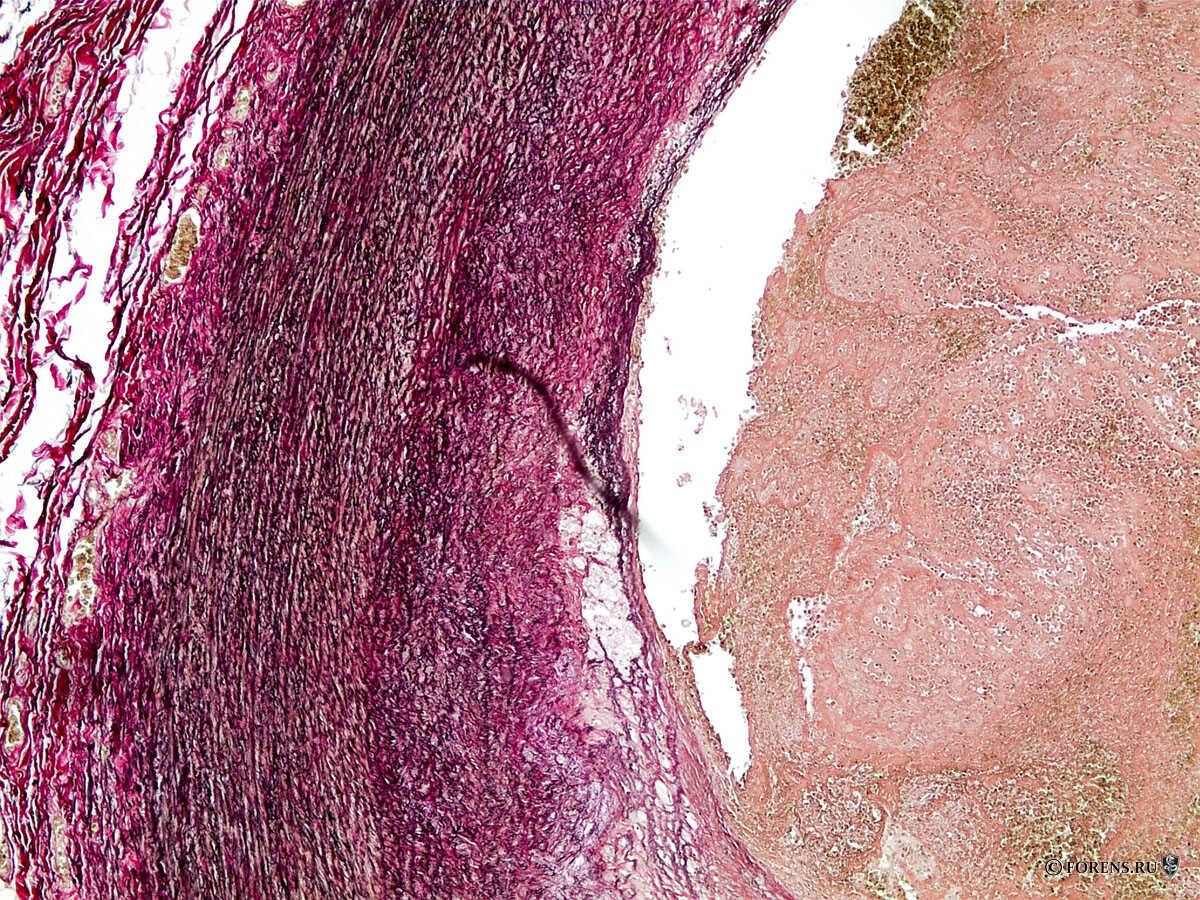 Гистологический срез стенки левой внутренней сонной артерии