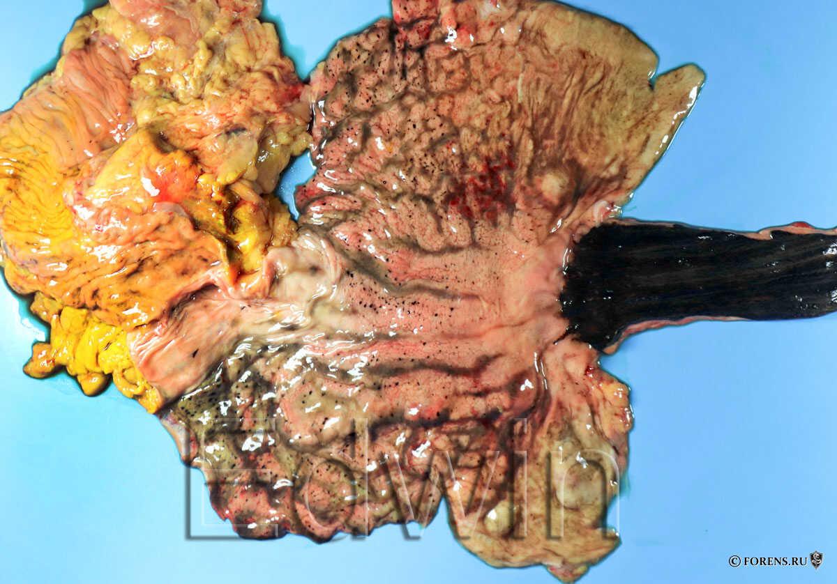 Пищевод и желудок с некротическими изменениями на слизистой