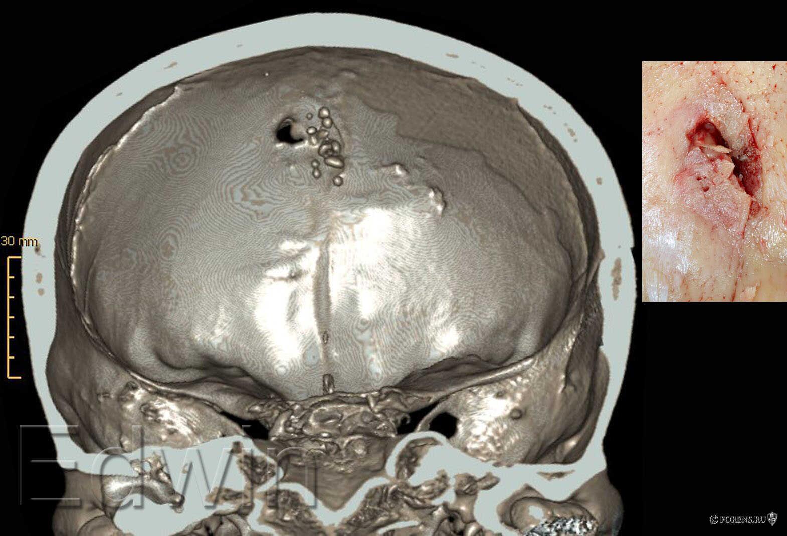 Входное огнестрельное повреждение на внутренней компактной пластинке лобной кости.