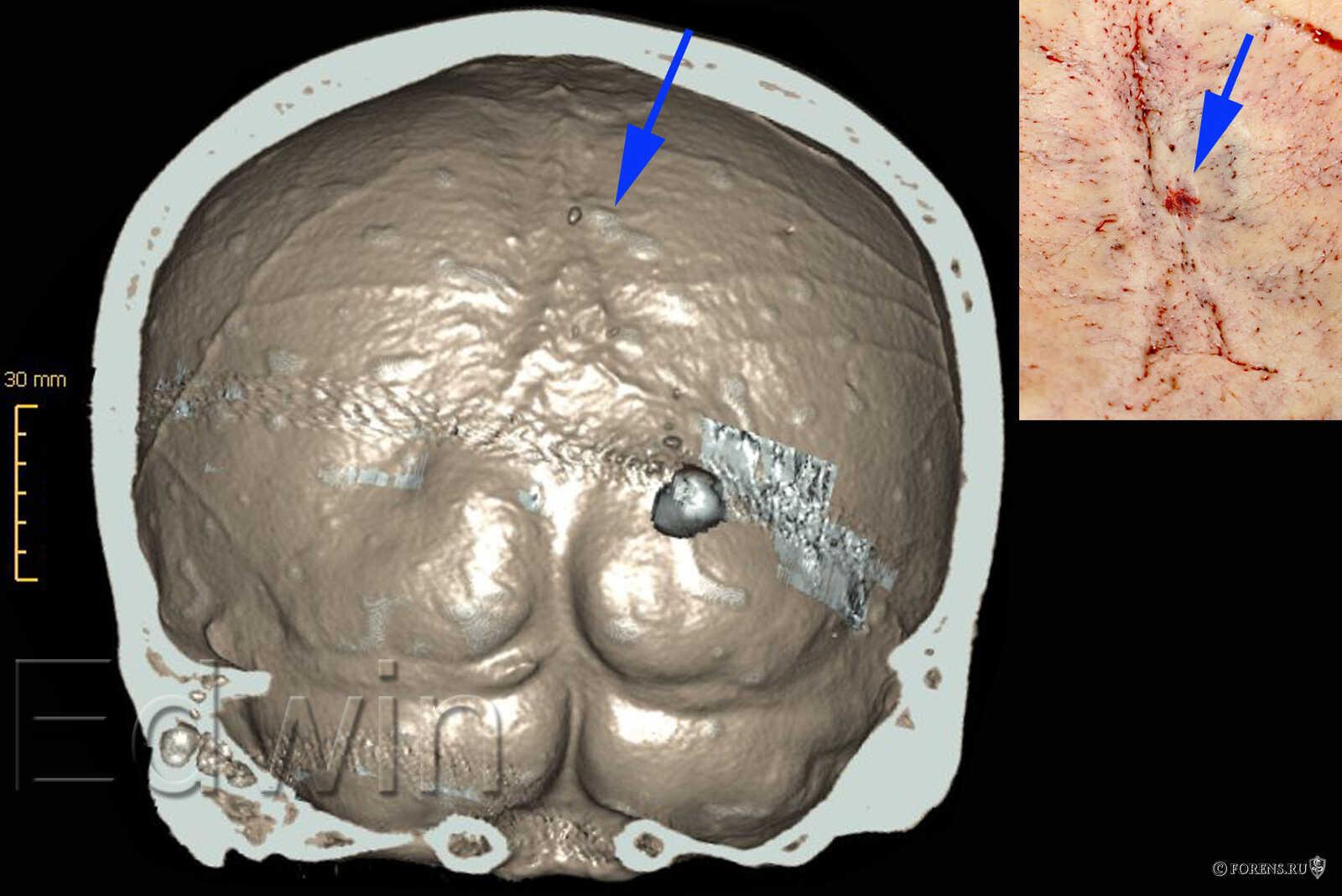 Затылочная кость изнутри с поверхностным дефектом внутренней компактной пластинки