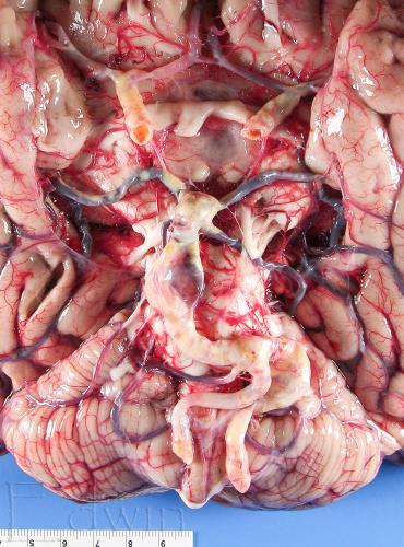 atherosklerose1.jpg