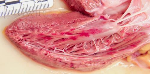Прикрепленное изображение: endokard2.jpg