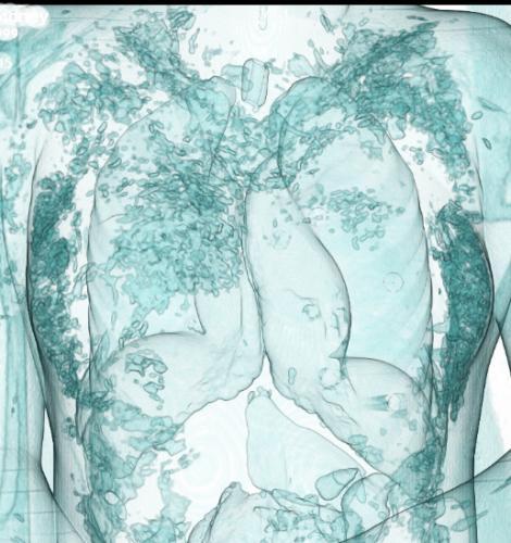 Прикрепленное изображение: emphysem.jpg
