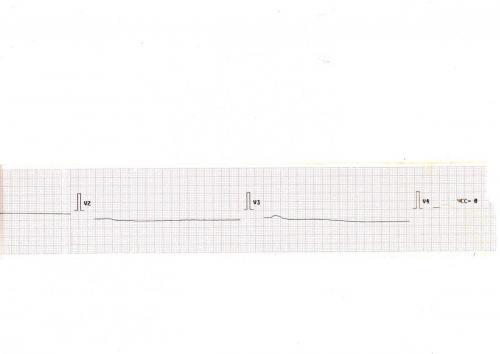 Прикрепленное изображение: Кардиограмма при реанимации 3.jpg