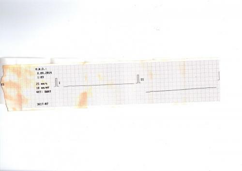 Прикрепленное изображение: Кардиограмма при реанимации 1.jpg