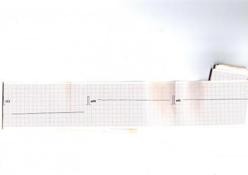 Прикрепленное изображение: Кардиограмма при реанимации 2.jpg
