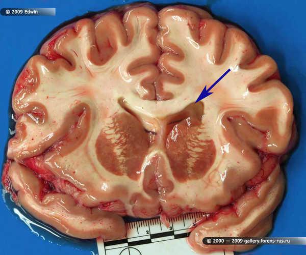 Рассеянный склероз, фронтальный разрез
