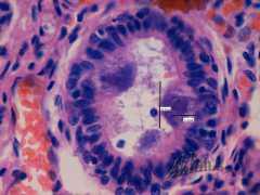Цитомегаловирусная инфекция