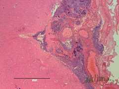 Головной мозг при септикопиемии