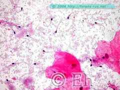 Сперматозоиды во влагалищном мазке