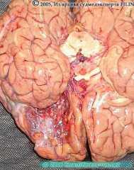 Киста после ушиба головного мозга