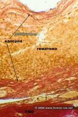 Капсула гематомы