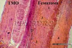 """""""Свежее"""" кровоизлияние на фоне организующейся гематомы"""