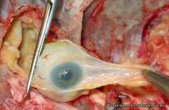 Выделение глазного яблока