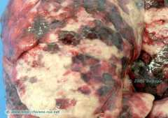 Аспирация крови при черепно-мозговой травме