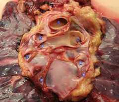 Методика препарирования крупных сосудов шеи и грудной аорты