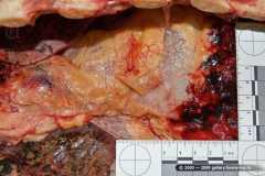 Эмфизема клетчатки переднего средостения