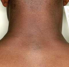 Кровоизлияния на коже коренных африканцев