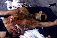 Взрывная травма ручной гранатой