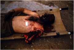 Неэкранированная минно-взрывная травма