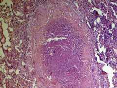 Туберкулёзные бугорки в легких